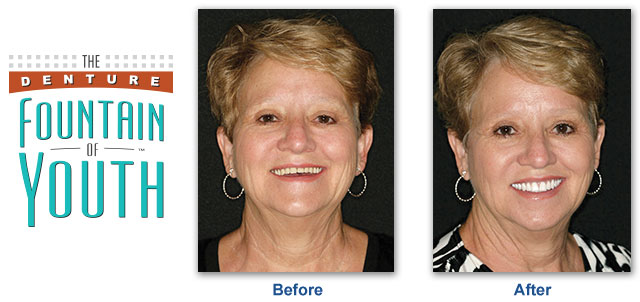 Fountain of Youth Dentures Urbandale IA