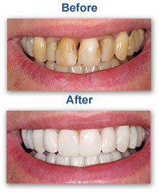 Dental Veneers Dentist Urbandale IA