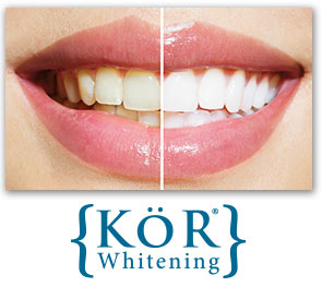 Teeth Whitening Dentist Urbandale IA