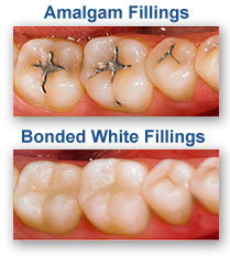 White Dental Fillings Urbandale IA